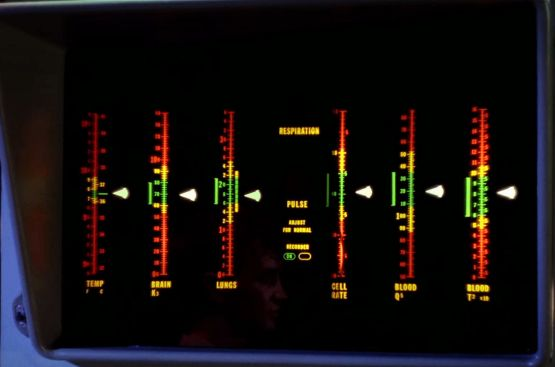 Image from Star Trek episode Charlie X showing electronic display from sickbay exam bed